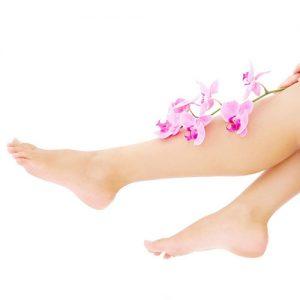 Varicose legs